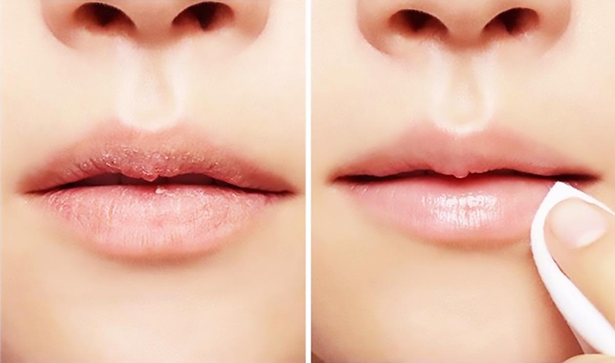 3 cách tẩy sạch da vùng môi bằng phương pháp tự nhiên cho đôi môi mềm, hồng căng mọng