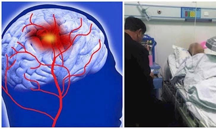 Nếu hay bị đau đầu bạn phải nhớ dấu hiệu của xuất huyết não: Nhiều người không qua khỏi chỉ vì nhầm lẫn