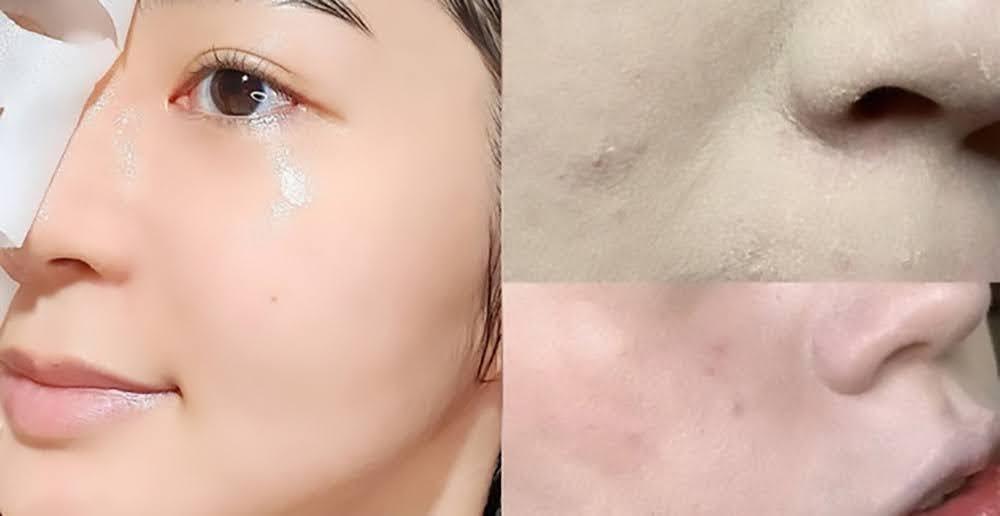 5 bí quyết để da không bị sần mốc khi makeup mùa lạnh