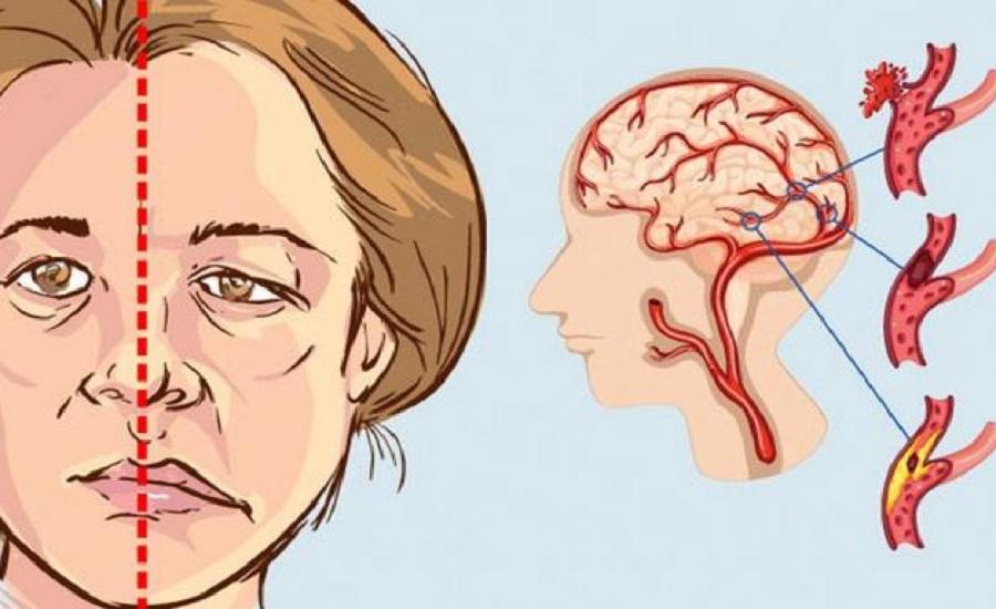 Nguyên nhân, dấu hiệu nhận biết sớm nhất và cách phòng tránh đột quỵ