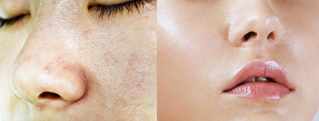 Những công thức mặt nạ dưỡng da dầu vừa giúp cấp ẩm vừa ngăn dầu hiệu quả