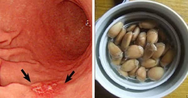 Chữa bệnh viêm loét dạ dày bằng hạt bưởi không hề khó: Cứ kiên trì sẽ được hưởng thành quả